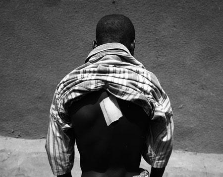 Ouagadougou, avril 09. La violence est quotidienne pour ces enfants. Sam, 14 ans , s'est fait poignardé dans le dos en pleine nuit par un individu, suite à une dispute. © Richard Delaume